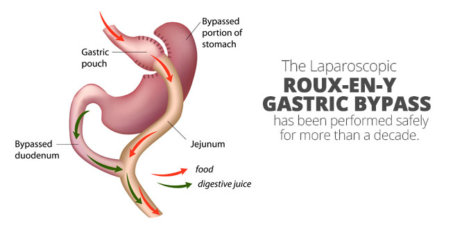 Is gastric bypass surgery safe