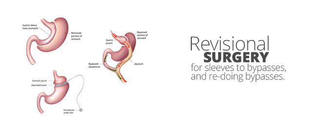 Revisional-Surgery