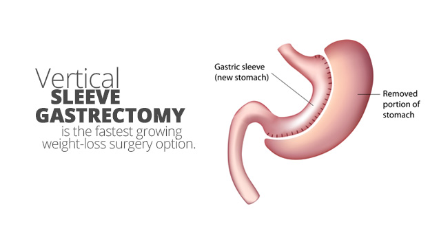 Better Long-Term Diabetes Outcomes w/ Sleeve Gastrectomy vs Medical Management