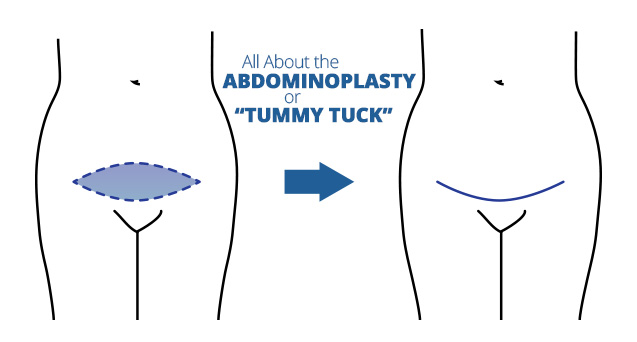"All About the Abdominoplasty or ""Tummy Tuck"""