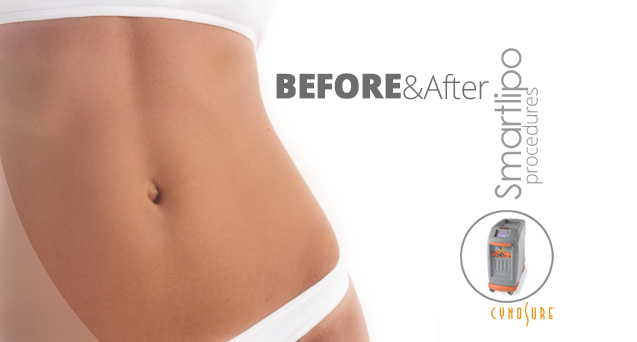 SmartLipo Before & After Photos
