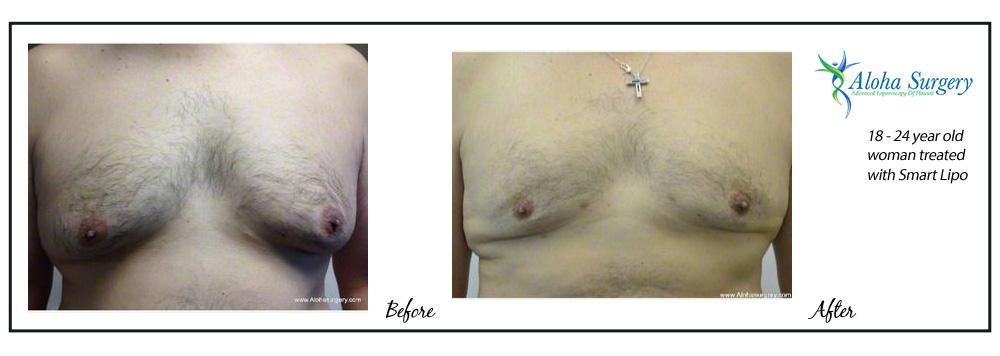 Aloha-Surgery-Smart-Lipo-9