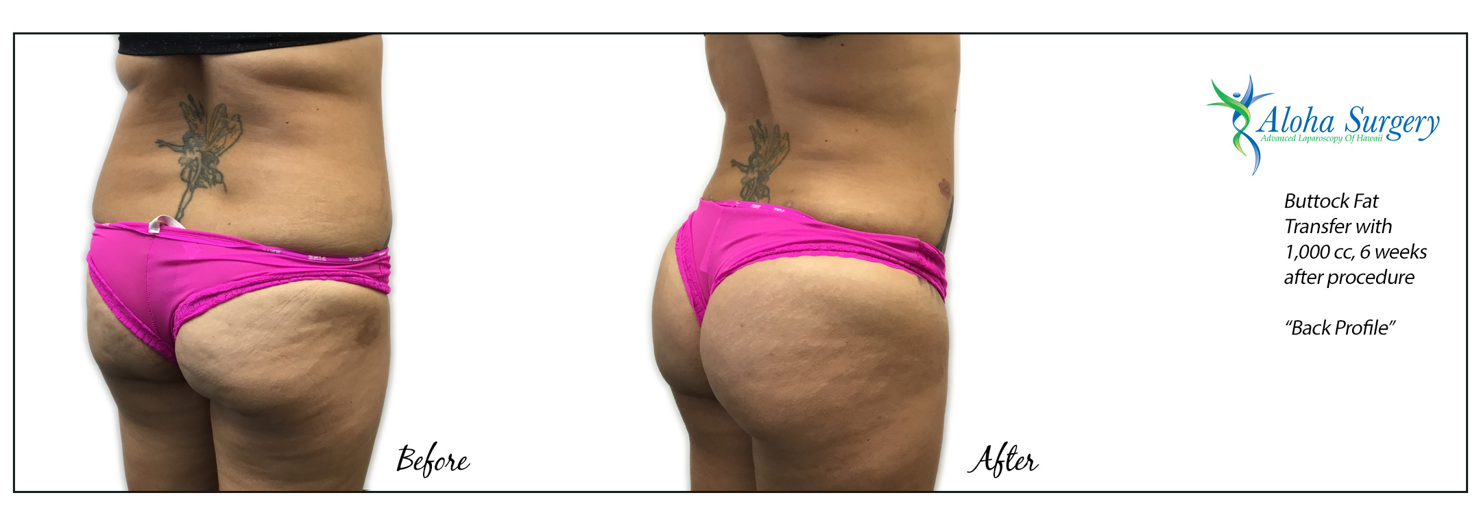 Aloha Surgery Buttock Fat Transfer