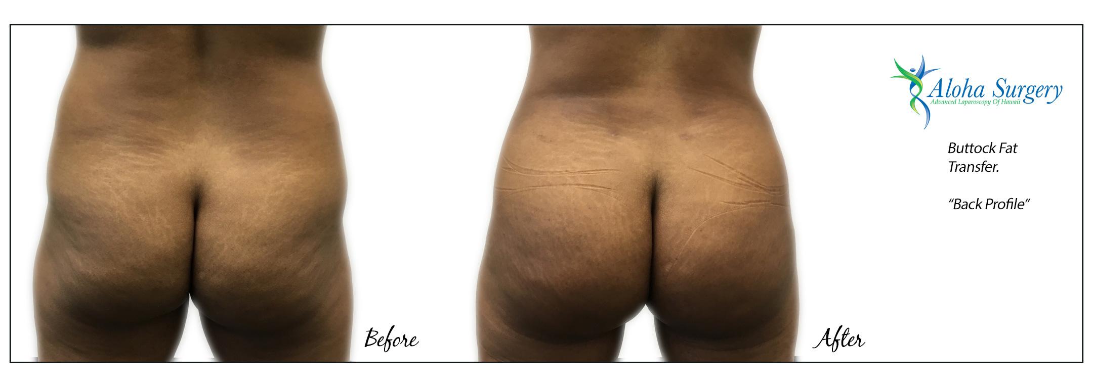 Aloha Surgery Buttock Fat Transfer
