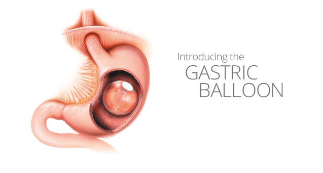 Introducing the Gastric Balloon